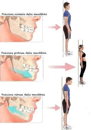 cropped-malocclusione-e-postura2.jpg